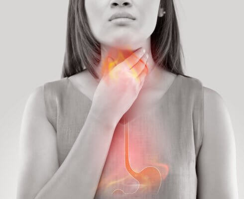 Woman Suffering From Acid Reflux Or Heartburn-Isolated On White Background; Blog: What is Heartburn?