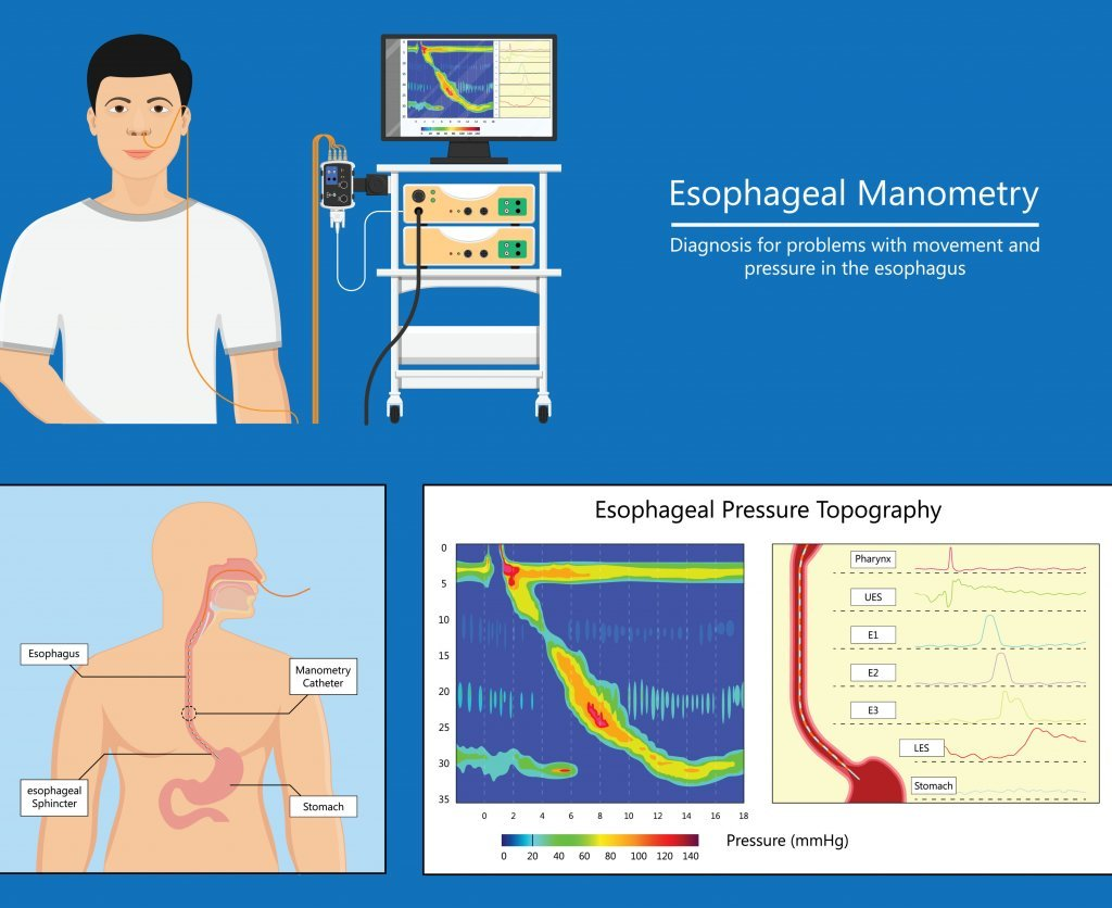 Esophageal manometry test esophageal diagnose food high resolution; blog: When is Manometry Used?