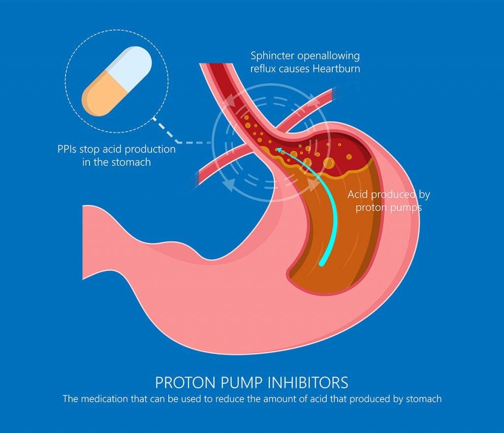 Proton pump inhibitors drugs medication for treatment stomach ac; blog: 4 GERD Treatment options