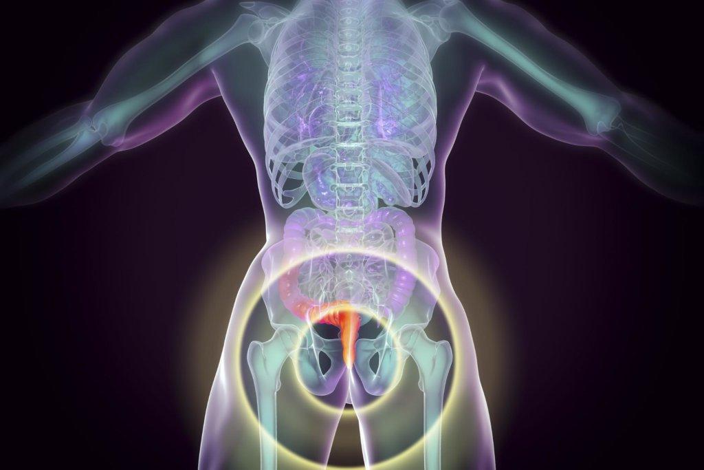 A diagram of where hemorrhoids occur