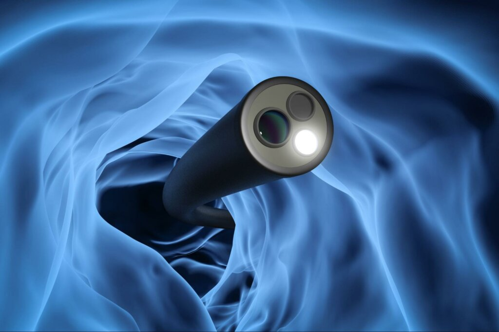 an animation of a tool used in a colonoscopy, one of the most Screenings Performed by Gastroenterologists